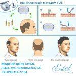 Трансплантація волосся методом FUE