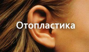 preview_otoplastika_ru