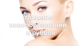 preview_vidalenya_ru
