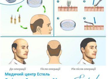 Волосся – це персональний інструмент особистої краси для самовираження.